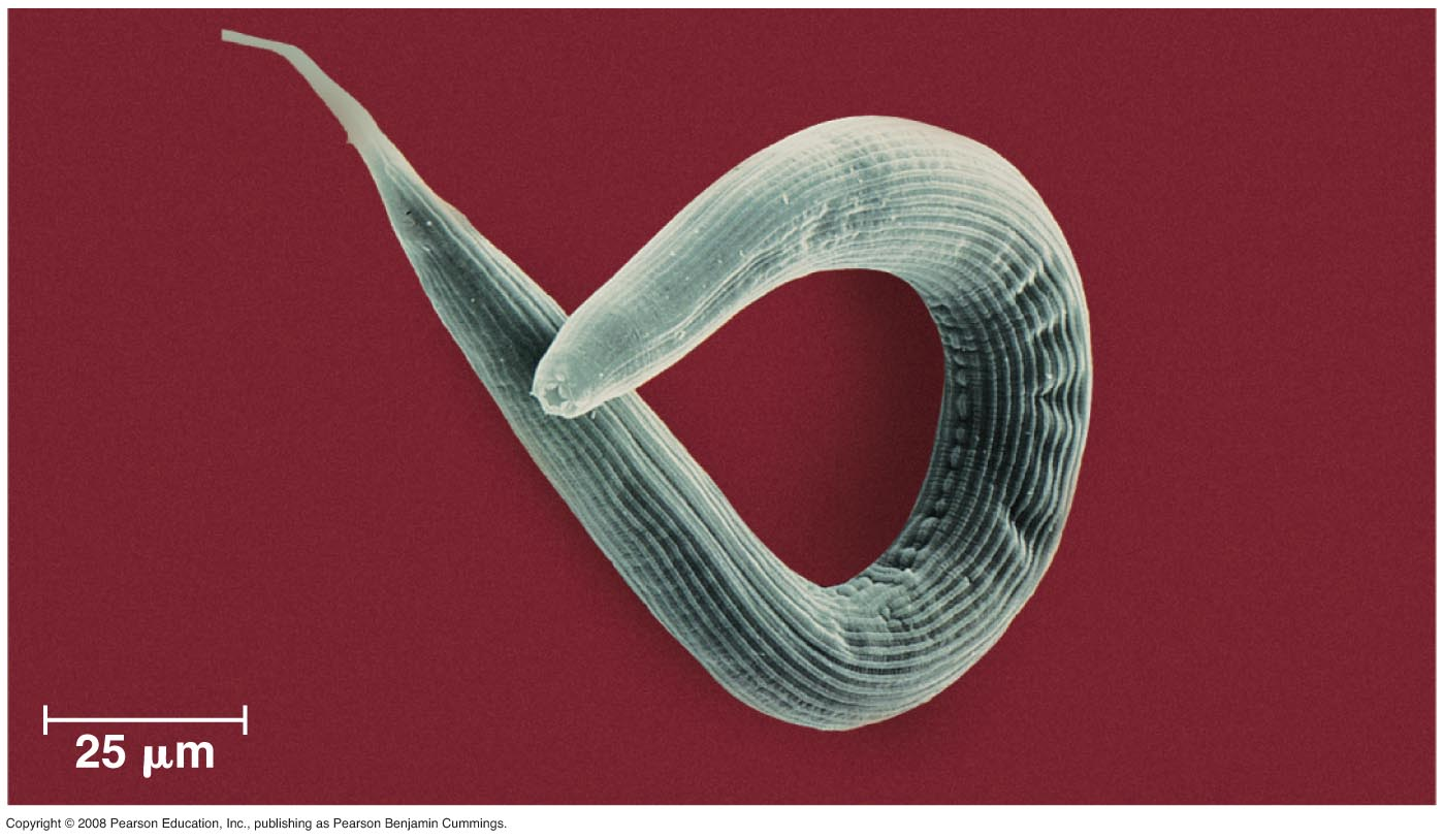 phylum nematode The nematodes (uk: / ˈ n ɛ m ə t oʊ d z /, us: / ˈ n iː m ə ˌ t oʊ d z /) or roundworms constitute the phylum nematoda (also called nemathelminthes) they are a diverse animal phylum inhabiting a broad range of environments nematode species can be difficult to distinguish, and although over 25,000 have been described, of which more than half are parasitic, it is estimated that over.
